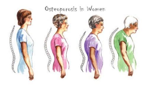 Osteoporosis-in-women