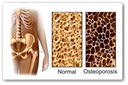 Osteoporosis-una-enfermedad-silenciosa-1187306